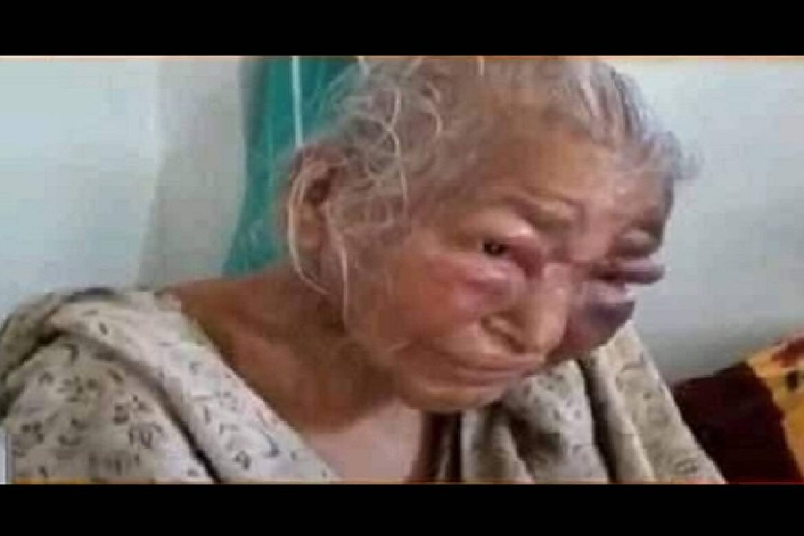 TMC Violence: 85-Year-Old Mother Of Bengal BJP Leader Passed Away After Brutal Assaulted By Trinamool Goons