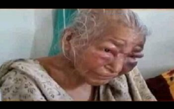 85 year old mother of bengal bjp leader who was brutally assaulted by alleged tmc goons passes away